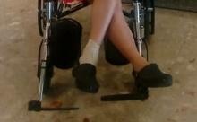brokenfoot2